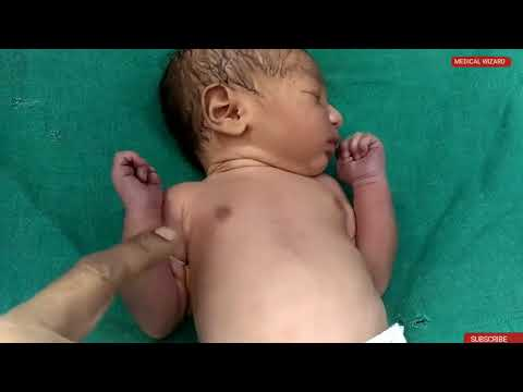 Neonatal Examination For Final Professional MBBS