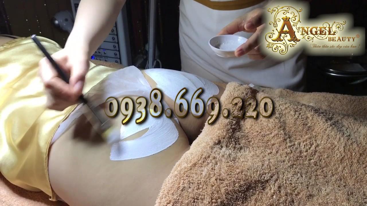 Angel Beauty Group – Trị Thâm Mông Hiệu Quả Với Công Nghệ Yag Laser Hàn Quốc