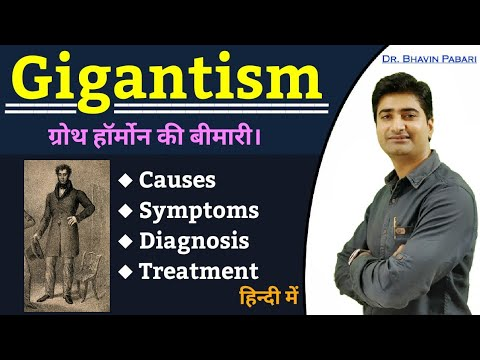 Why Some Have Height More Than 7 Feet? GIGANTISM IN HINDI | CAUSES | SYMPTOMS | DIAGNOSIS |TREATMENT