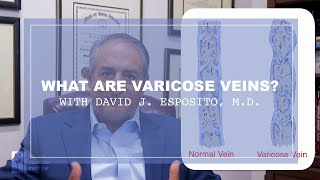 WHAT ARE VARICOSE VEINS? | Dr. David Esposito - Cardiac, Vascular, & Thoracic Surgeon