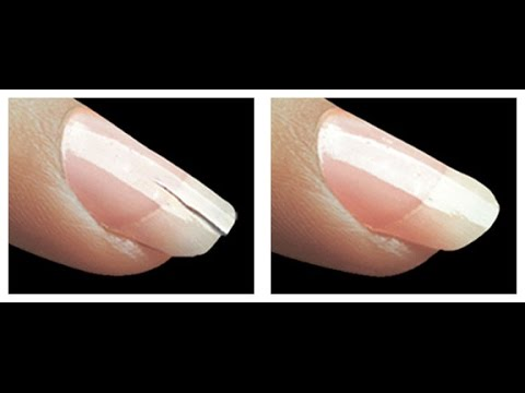 How to Fix a Chipped Nail in 2 Mins - YouTube B12 Deficiency Nails