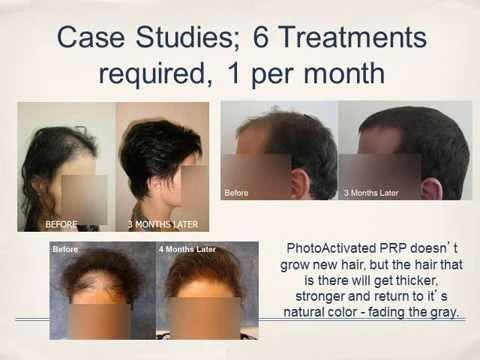 Regenerative Medicine Younger Skin Hair Regrowth Prp