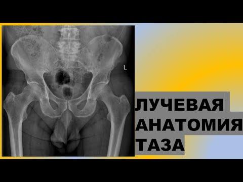 Лучевая анатомия таза