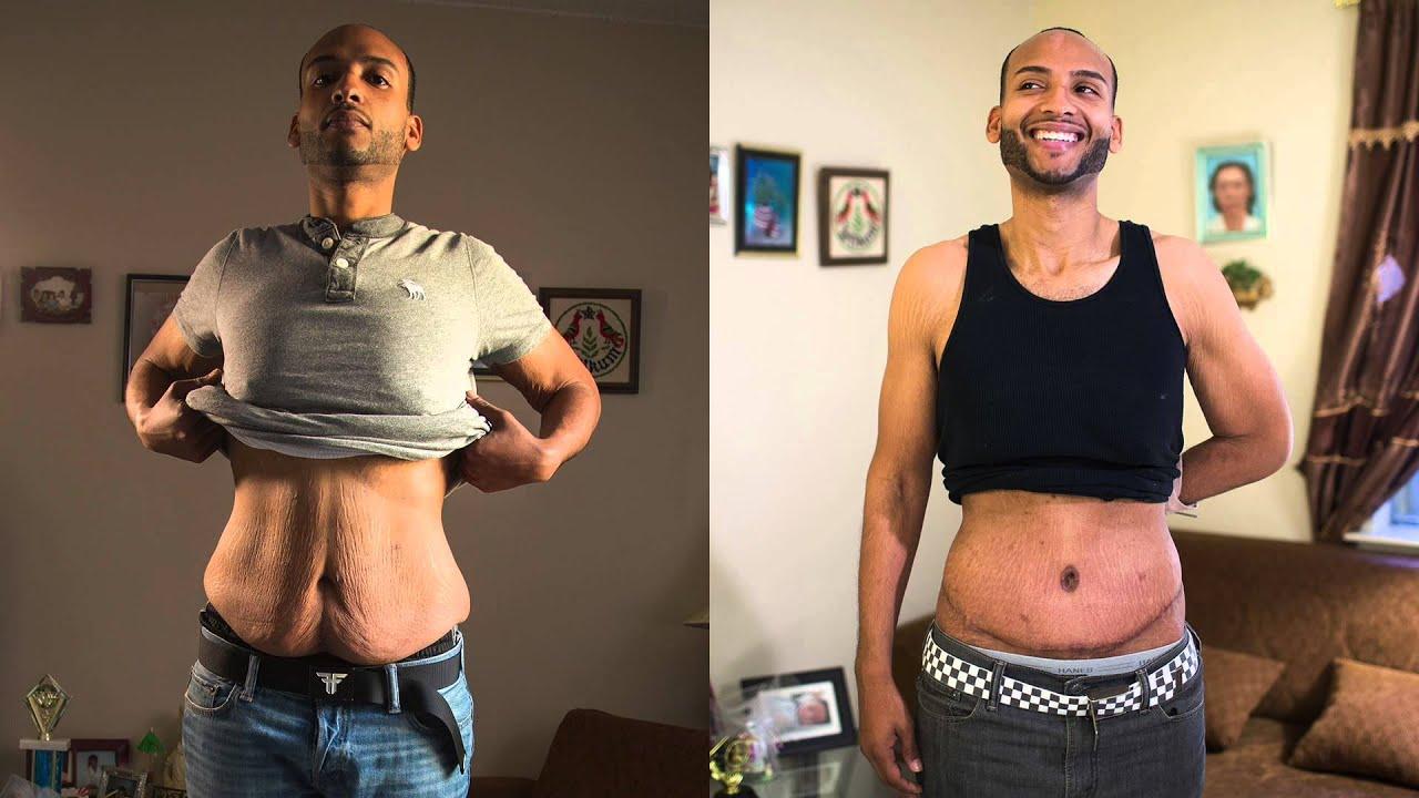 no sagging skin during weight loss