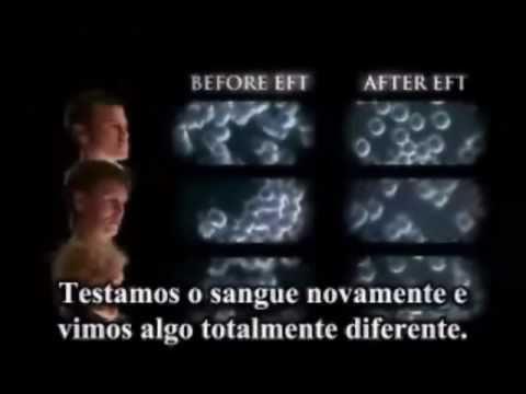 EFT - técnica de libertação emocional