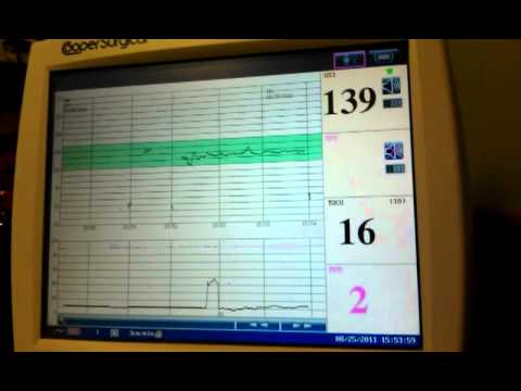Non Stress Test At 38 Weeks Pregnant Youtube