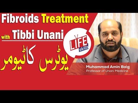 Fibroids Treatment with Tibbi Unani in Urdu/Hindi   Life Skills TV