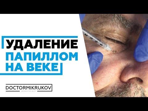 Бородавки: уход после удаления