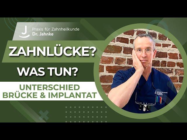 Welche Möglichkeiten gibt es bei einer Zahnlücke? | Unterschied Brücke und Implantat | Dr. Jahnke