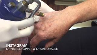 Treating age spots / liver spots on the hands. For medical education- NSFE