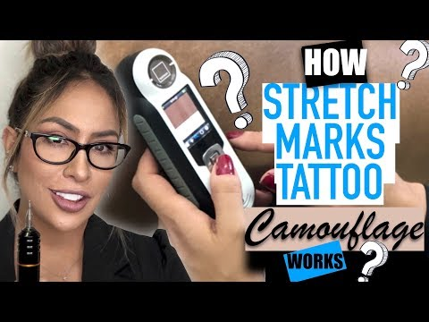 See The Difference Between A Camouflaged Stretch Mark And An Uncamouflaged Streak.