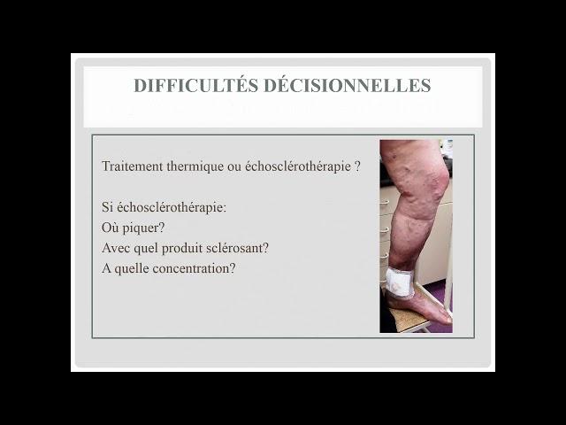 Les difficultés rencontrées en phlébologie - Société Française de Phlébologie