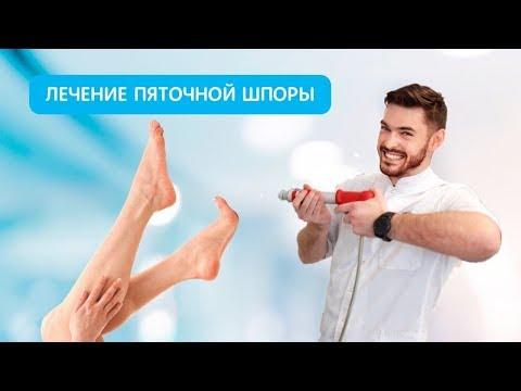 Лечение пяточной шпоры