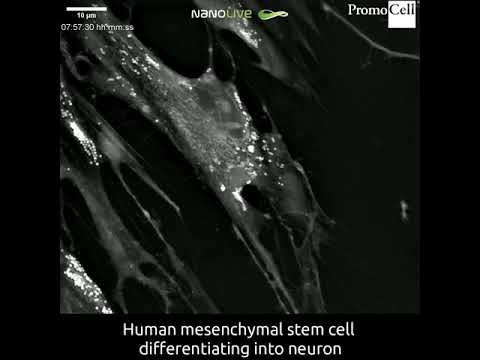Cells in Action: Differentiation of umbilical cord matrix human mesenchymal stem cells into neurons