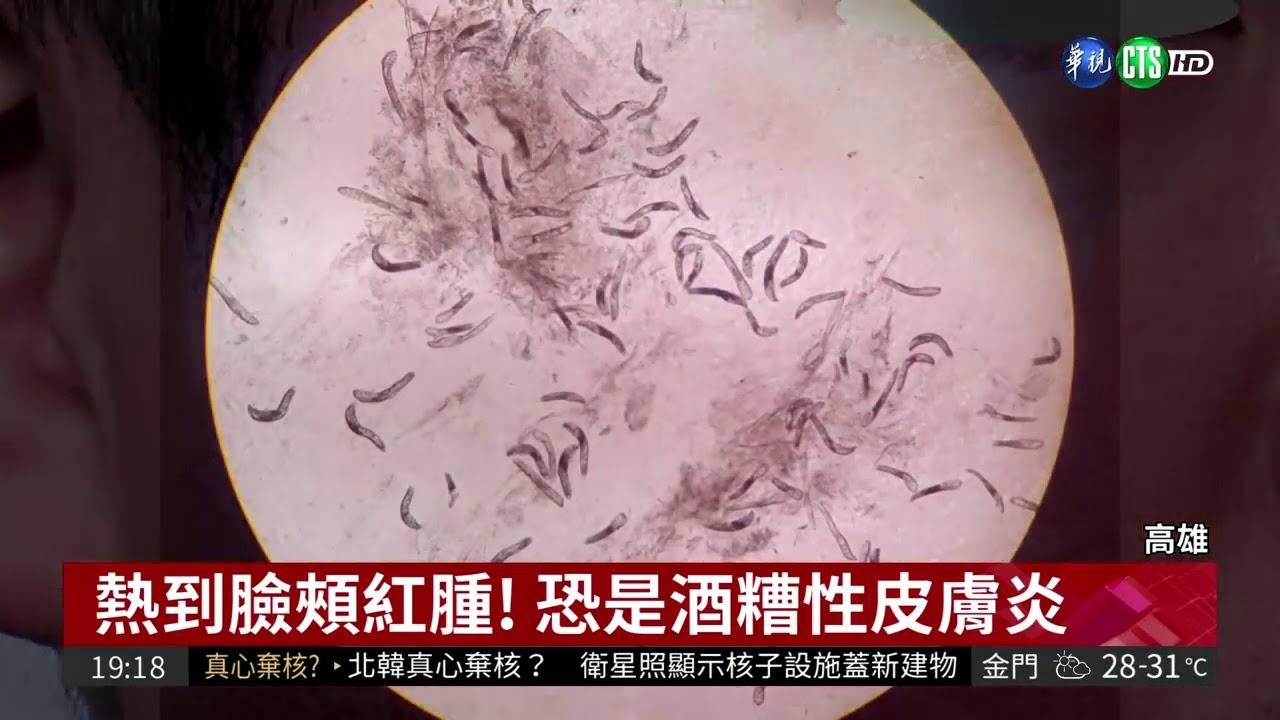「熱」出病!蟎蟲爬臉害酒糟性皮膚炎 - YouTube