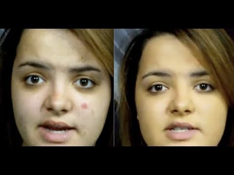 How to: Cover a Scar/ Scab/ Popped Pimple ♡ Theeasydiy #Makeup