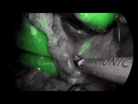 Indocyanine green (ICG) enhanced fluorescence in laparoscopic Cholecystectomy surgery