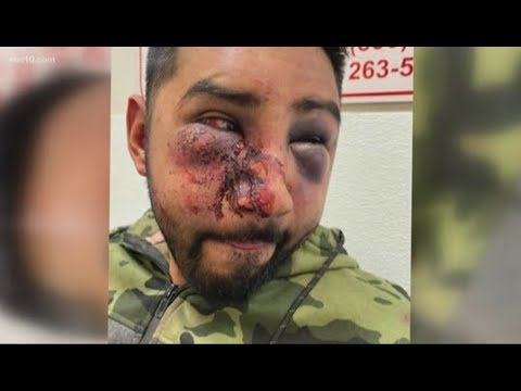 ABC10 Exclusive; Stockton Man Talks Allegedly Being Beaten By San Joaquin County Officers