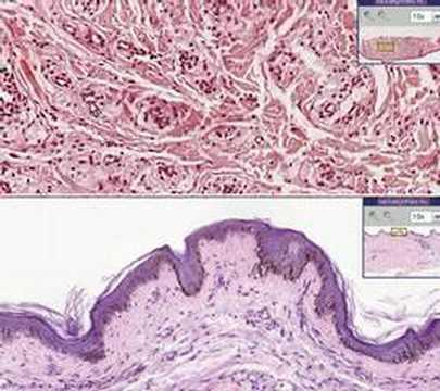 Histopathology Skin --Xanthoma - YouTube