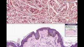 Histopathology Skin --Xanthoma