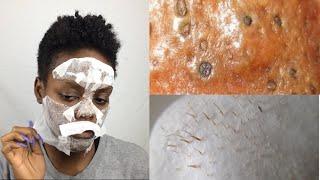 dIY Egg Blackhead & Whithead Remover Peel Off Mask