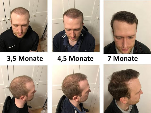 Teil 6: 7 Monate Post OP Haartransplantation Türkei