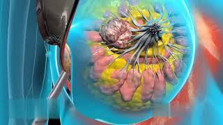 Рак молочной железы Хирургия | Лечение рака молочной железы
