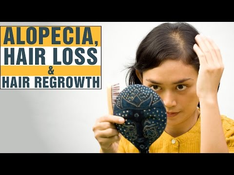 7 Best Home Remedies For ALOPECIA AREATA, Rapid Hair Loss & Baldness