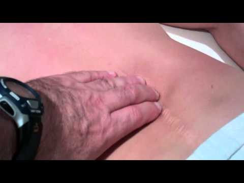 Rolfing  a client with a Harrington Rod implant for a scoliotic condtion