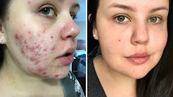 hqdefault - Best Skin Products For Acne Scarring