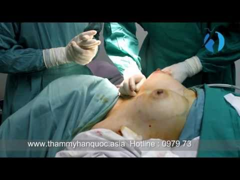 Nâng ngực nội soi - TMV ASIA