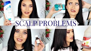 I'M FLAKEY! This Is How I Fix It: Dandruff & Other Scalp Problems!