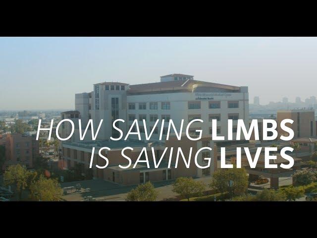 How Saving Limbs is Saving Lives