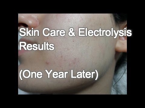 Skin Care & Electrolysis Results - One Year later