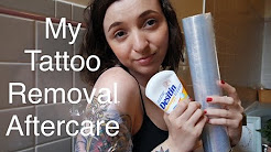 Tattoo Removal Aftercare!