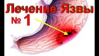 видео Язва желудка: лечение в домашних условиях, рецепты