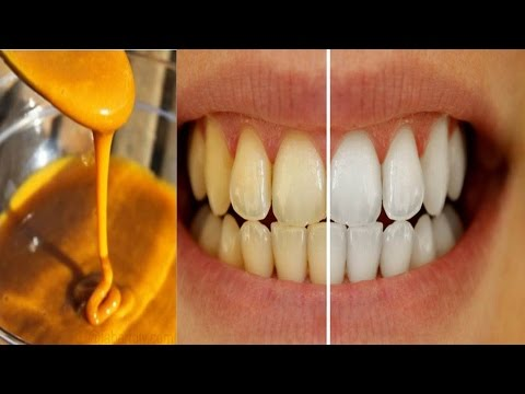 Homemade Toothpaste to Whiten Teeth & Reverse Gum Disease using Tumeric, Coconut oil & Peppermint - YouTube