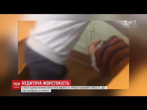 ТСН: У Росії побили хлопчика через його українське коріння
