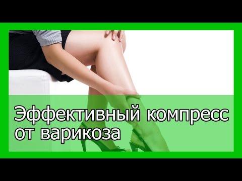 Вены на ногах: лечение