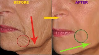 Homemade Anti Aging Skin Tightening Face Mask for Younger Looking Skin