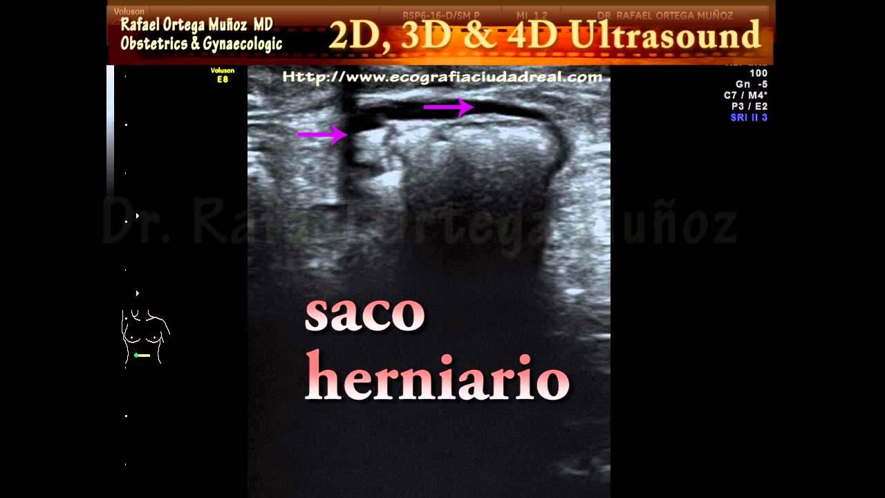 Hernia Umbilical 2d Clinica Ginecologica Dr  Rafael Ortega