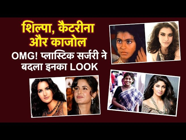 Top 10 Bollywood Actresses जिनकी Plastic Surgery हुई पास| Before & After SHOCKING LOOK