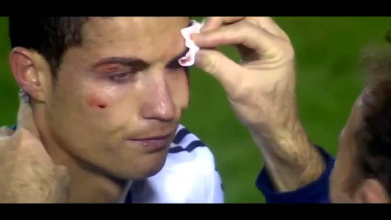 Cristiano Ronaldo KO ojo golpeado madrid vs levante  YouTube