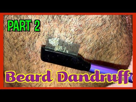 beard-dandruff-part2-|-pitaflakes