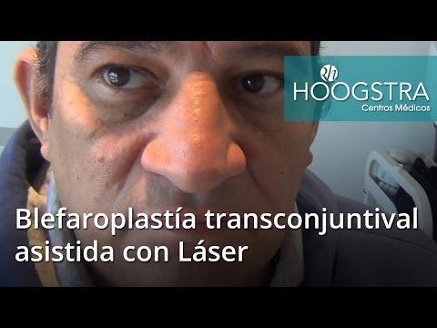 Blefaroplastía transconjuntival asistida con Láser (16064)