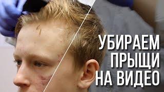 Убираем прыщи на видео Remove acne on video Mocha AE