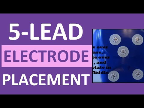 5 Lead Electrode Placement Cardiac Telemetry Monitor for EKG/ECG
