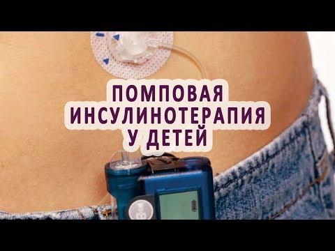 Применение инсулиновой помпы для лечения детей-диабетиков