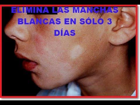 ELIMINA LAS MANCHAS BLANCAS EN SÓLO 3 DÍAS / (FÁCIL Y RÁPIDO)