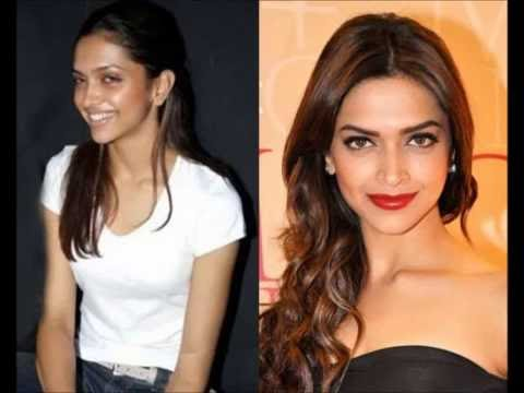 Deepika Padukone Plastic Surgery Youtube